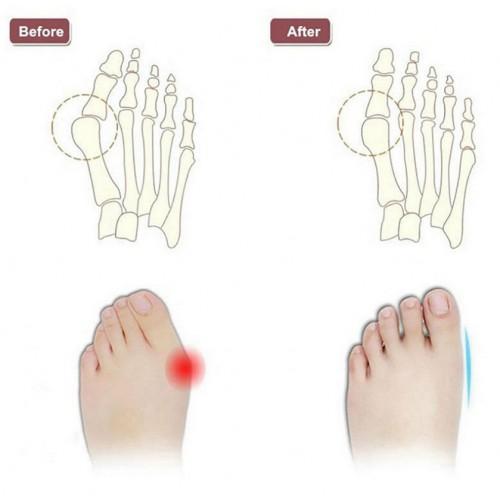Силиконовые разделители. Корректор для пальцев ног  в  Интернет-магазин Zelenaya Vorona™ 4